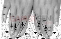 11ans et doigts déformés